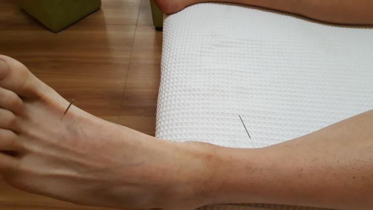 accupunctuur 2